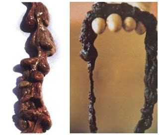 colon cleansing pictures picture 5