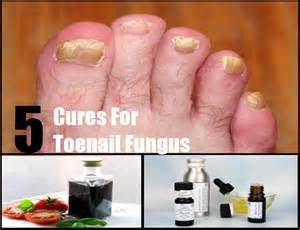toenail fungus home remedies picture 7