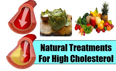 coralie and herbal remedy for cholesterol picture 9