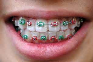 braces teeth picture 14