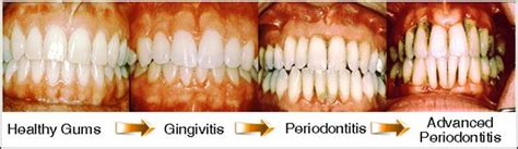 can you cure tooth abscess with oil of picture 9