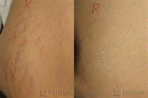 coolbeam laser for stretch marks nyc picture 9