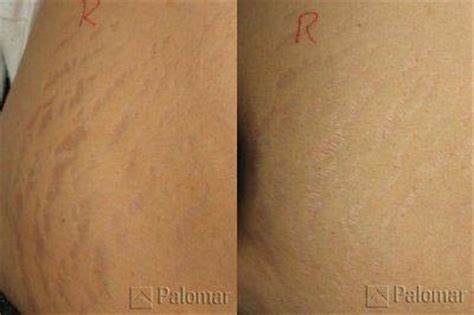 cool beam laser stretch marks reviews picture 6