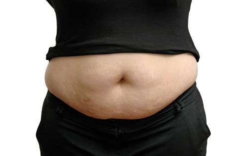 cellulite belly galler picture 5