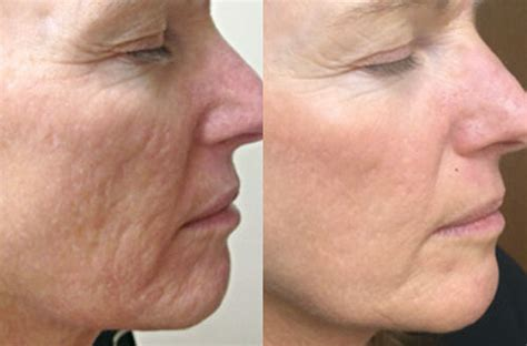acne rosecea picture 9