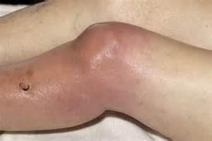 swollen knee joint picture 7