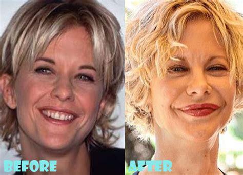 worst aging celebrities picture 6