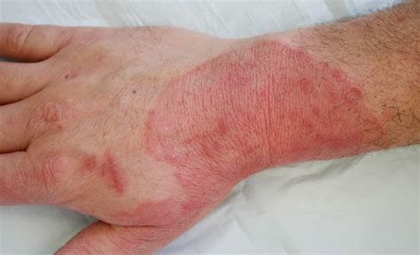 fungal skin infection picture 15