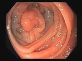 malignant colon polyp picture picture 7
