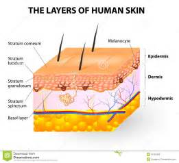 melanosis of the skin picture 10