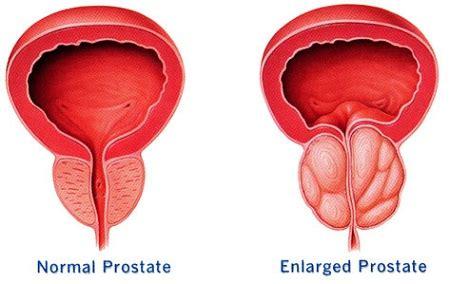 alternative treatment for prostatitis picture 10