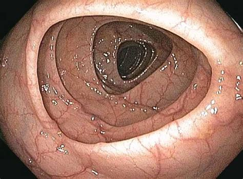 cancerous polop in colon picture 11