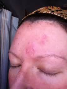 does prozac help acne picture 10
