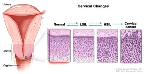 yeast infections with abnormal pap smear picture 8