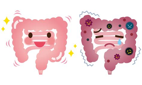 disorders of the colon picture 15