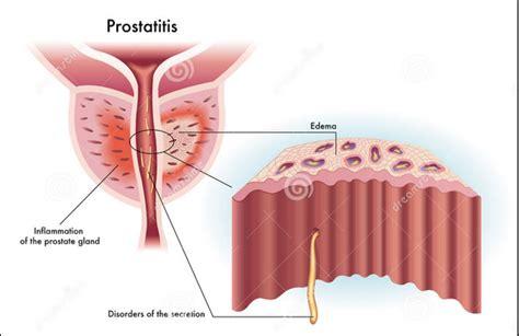 acute prostatitis picture 18