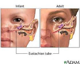 acne along eustachian tube picture 1