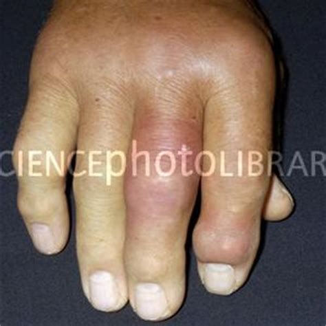 does colcrys cause joint pain picture 15