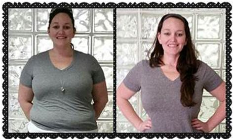 carolina weight loss surgery picture 6