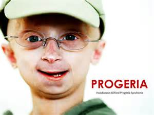 accelerated aging progeria syndrome picture 15