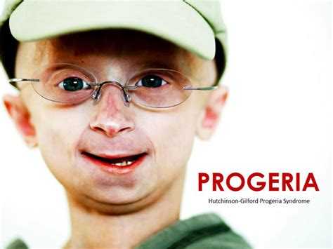 accelerated aging progeria syndrome picture 9