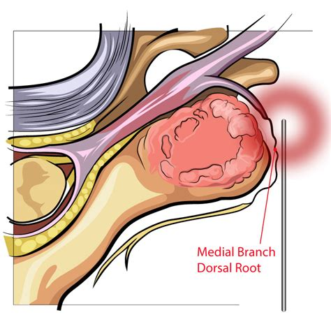 facet joint nerve ablation picture 13