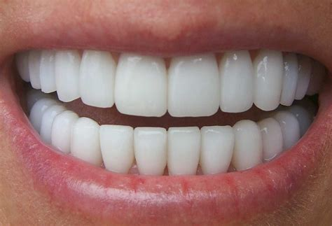 chalky teeth picture 6