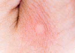 proboitic for skin allergy due to insect bites picture 9