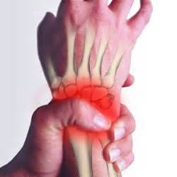 home remidies for wrist joint problem picture 15