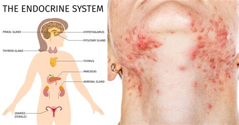 foods that clear up acne picture 13