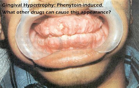 warts and antiepileptic drugs picture 14