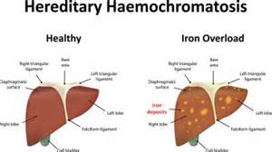 cirrosis of the liver hemochromatosis picture 10