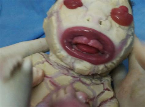 baby skin & face rash picture 2