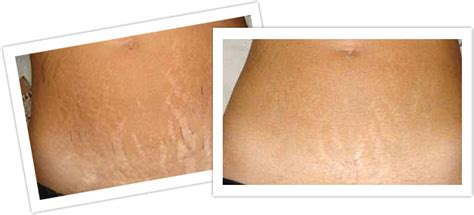 revitol on old stretch marks picture 14