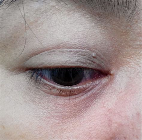 amazing touch syringoma removal picture 10