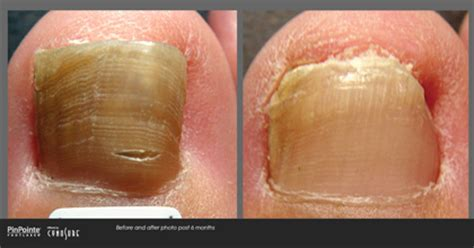 premier nail fungus chicago picture 18