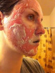 recovery time for fractional deka skin resurfacing picture 6