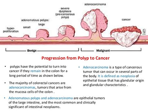 types of colon cancer tumors picture 7