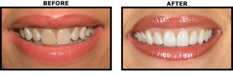teeth whitening arlington picture 3