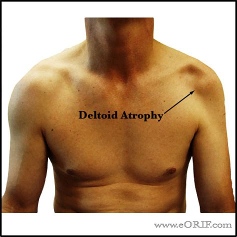 deltoid muscle paralysis picture 1
