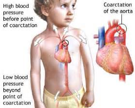 causes of decreased blood flow to babies in picture 13