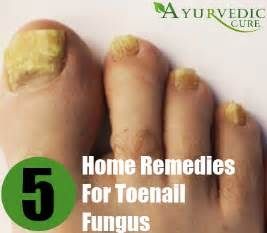best cure for toe nail fungus picture 5
