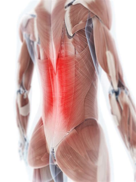 back muscle pain picture 10