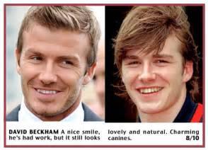procedure straightens teeth on star picture 15