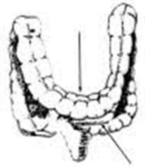 dropped colon picture 17
