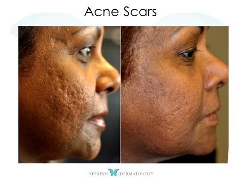 acne scar treatments in houston picture 7