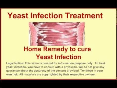 yeast infection treatment costs picture 1