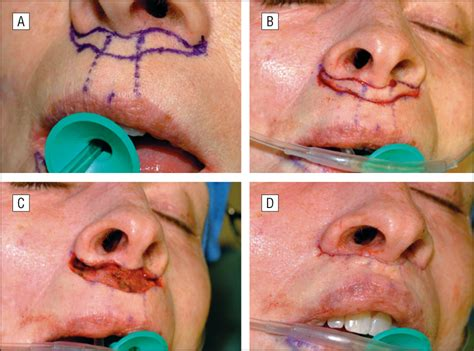 subnasal lift picture 6