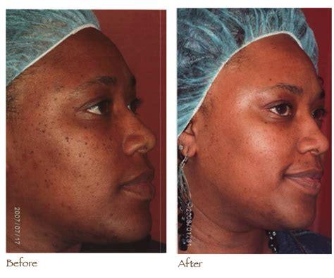 fading acne dark spots picture 1