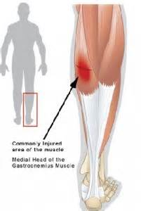 calf muscle lump picture 17